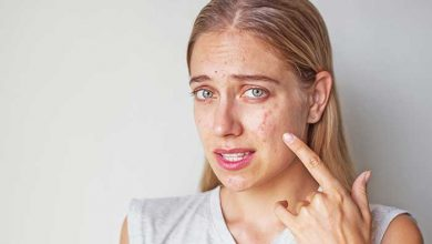 Photo of Foods to avoid if you have skin allergy